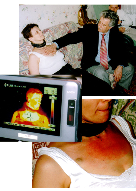 Thermographic test with infrared camera